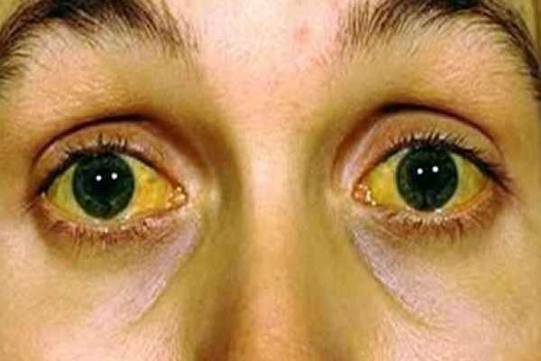 Jaundice Icterus Types Causes Symptoms Diagnosis